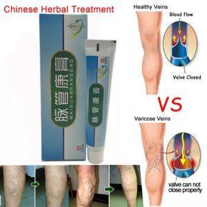 китайская медицина варикоз