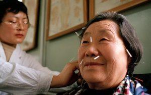 метод китайской медицины